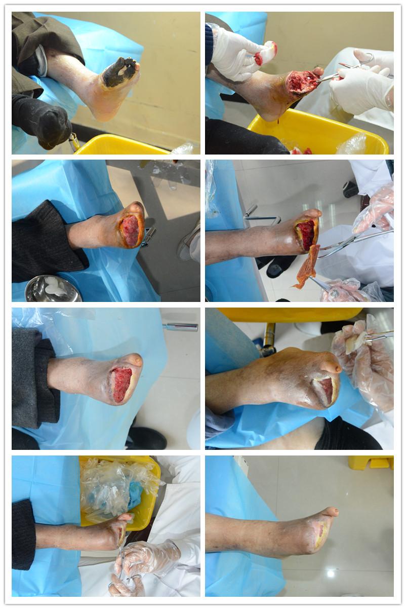 商丘市第五人民医院患者加拿大华侨武某康复过程